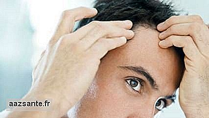 10 Measures to eliminate dandruff