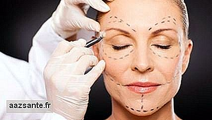 Bichectomy: Know everything about the procedure to tune the face