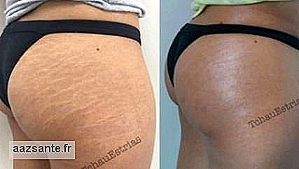 Brazilian tattoo artist succeeds in hiding stretch marks