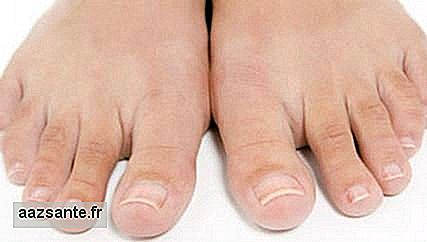 Swollen ingrown nail: going to the doctor at the beginning of the symptoms avoids surgery