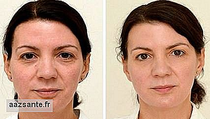 In experiment, woman shows effects of drinking 3 liters of water per day