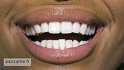 Laser whitening uses light to increase the efficiency of the products used