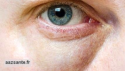 Lower blepharoplasty specifically treats bags of fat under the eyes