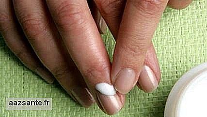 Ingrown nails in the hands: treatments and how to avoid