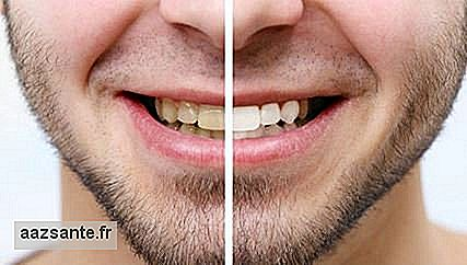 Porcelain veneers: what they are, how they are step by step to put them and how long they last