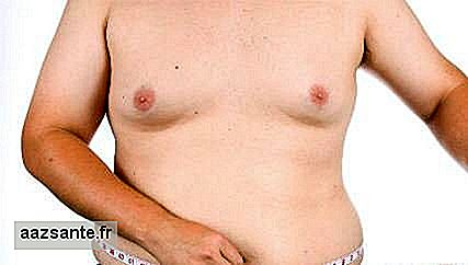 Understand the treatment of fat accumulation in the chest of men