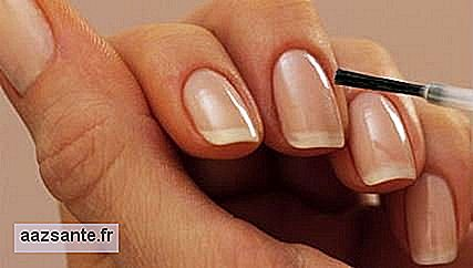 Weak nails: diet can change nail health