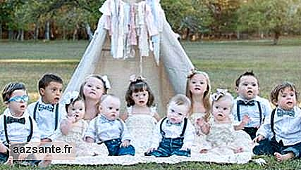 Down Syndrome Children Thrills in Photo Shoot