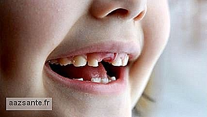 What is the child's teeth exchange cycle?