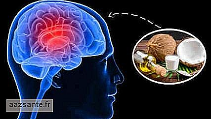 Medical claims that husband has improved Alzheimer's with coconut oil