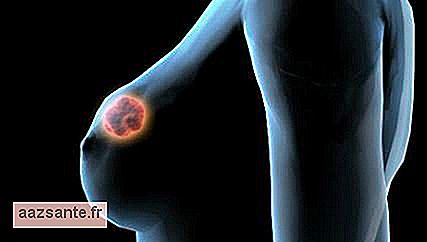 7 Important facts you need to know about breast cancer
