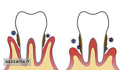7 Signs that gingivitis progressed to periodontitis