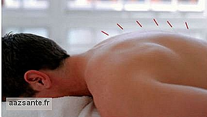 Acupuncture can treat back pain and arthritis