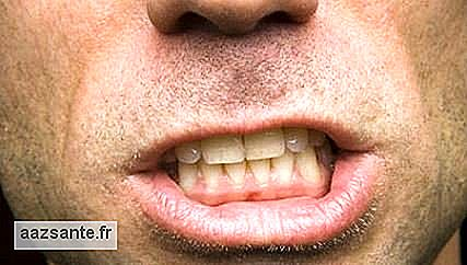 Bruxism is related to stress and can disrupt sleep