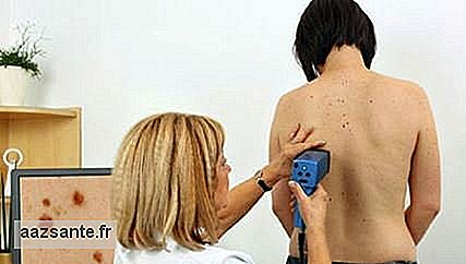 Digitale Dermatoskopie: Skin Cancer Diagnostic Exam