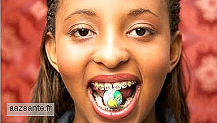 Festive meals may be treacherous for users of orthodontic appliances
