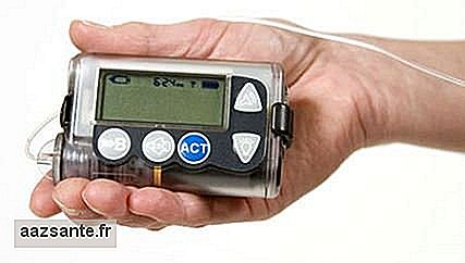 Insulin pump decreases number of injections in the patient with diabetes