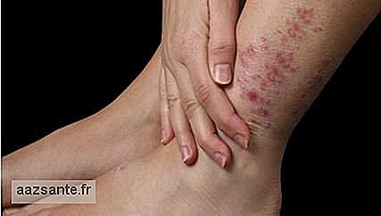 Inverted psoriasis: main symptoms and how to treat