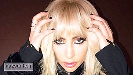 Lady Gaga cancels participation in Rock in Rio due to chronic pain