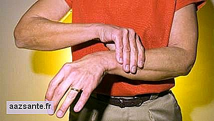New remedy for rheumatoid arthritis will be offered by SUS