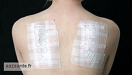 Patch test: contact test is important in the diagnosis of contact dermatitis