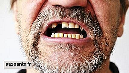 Stress Can Cause Teeth Drop?