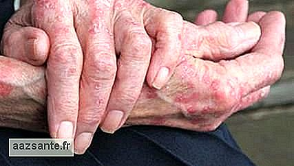 Study relates eczema to risk of impotence