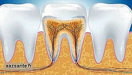 What is canal treatment?