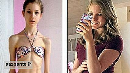 With boyfriend encouragement, girl has recovered from anorexia