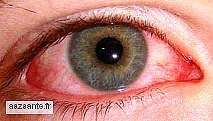 0619a78f93a Zika virus: kennen de symptomen - nl.aazsante.fr