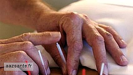 Acupuncture improves the quality of life of Alzheimer's patients