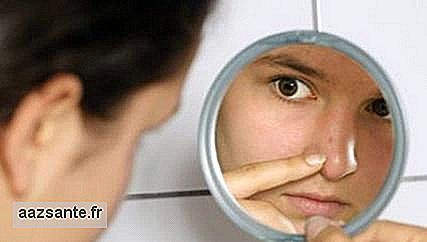 Stress can trigger onset of acne